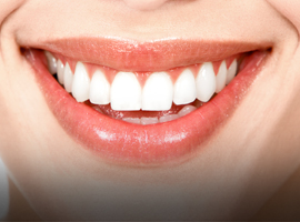 Teddington Teeth Whitening
