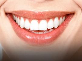 Teddington Teeth Whitening