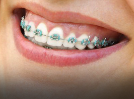 Teeth Straightening at Ivy Clinic