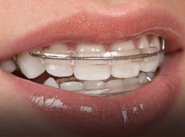 Tooth repair treatment