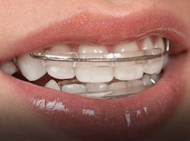 Tooth repair treatment