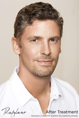 Man after Restylane facial filler treatment