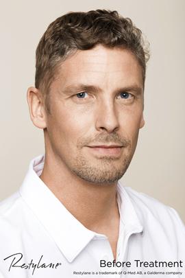 Man before Restylane facial filler treatment
