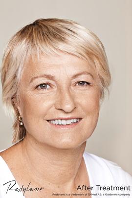 Woman after Restylane facial filler treatment