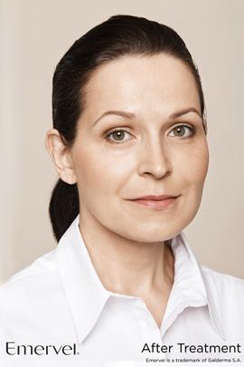 Woman after Emervel dermal filler treatment