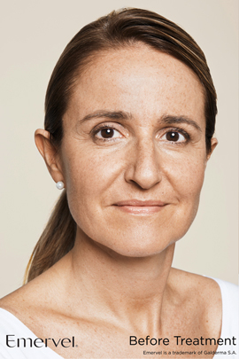 Woman before Emervel dermal filler treatment