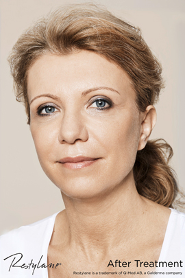 Woman after Restylane cheek treatment