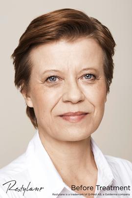 Woman before Restylane eye treatment