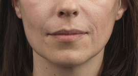 Woman after Restylane lip treatment