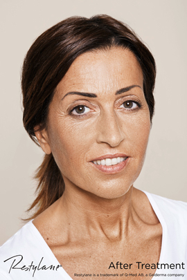 Woman after Restylane non-surgical facelift