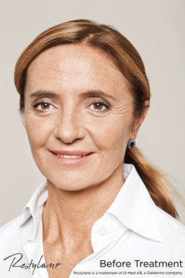 Woman before Restylane non-surgical facelift