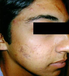 Man after skin treatment