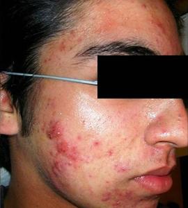 Man before skin treatment