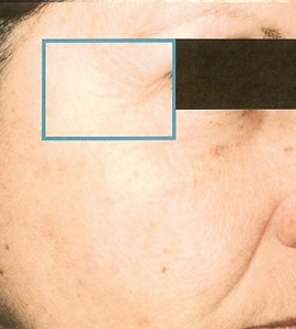 Woman after skin treatment