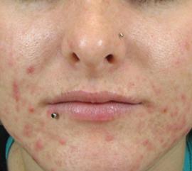 Woman before skin treatment