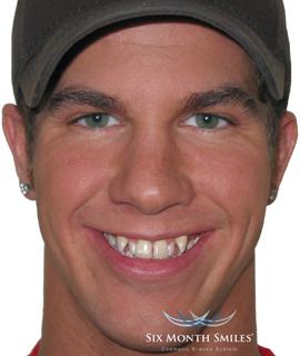 Before teeth straightening treatment