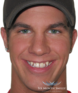 Man before Six Month Smiles teeth straightening treatment