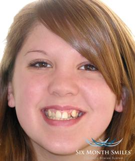 Before teeth treatment