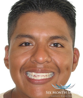 Uneven teeth before makeover