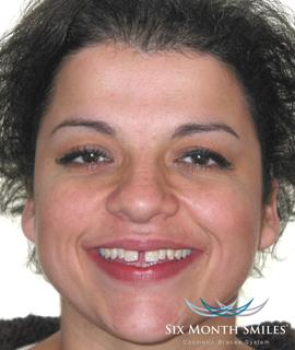 Before teeth correction treatment
