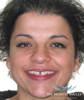 Woman before Six Month Smiles teeth straightening treatment