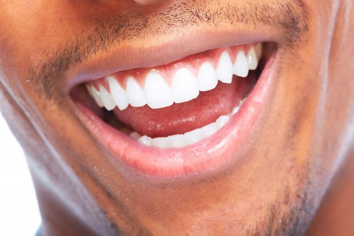 Professional Teeth Whitening in Teddington